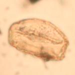 pollen quercus arkeomap